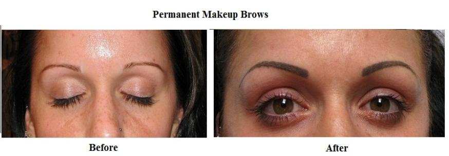 Block tattoo eyebrows done with a tattoo gun resembles a for Eyebrow tattoo aftercare instructions